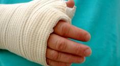 Injured arm.
